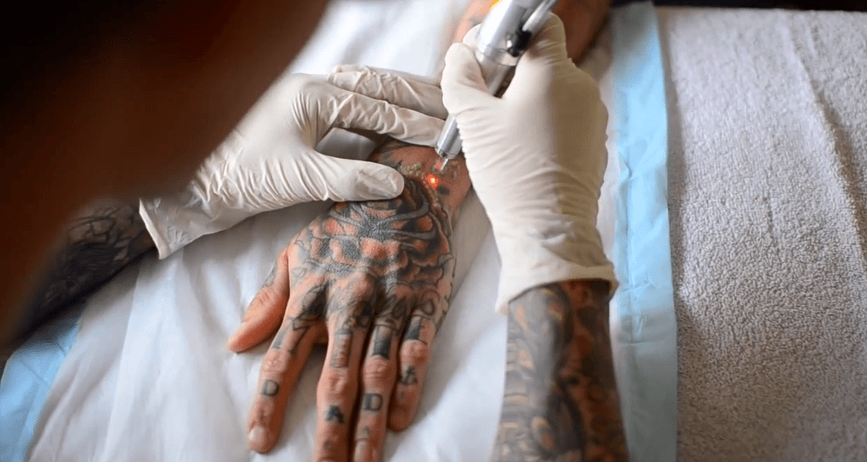 tattoo the permanent scar Beth tattoos permanent cosmetics in the second podcast, we're going to talk about permanent cosmetics, tattoos to disguise scars, and nipple tattooing.